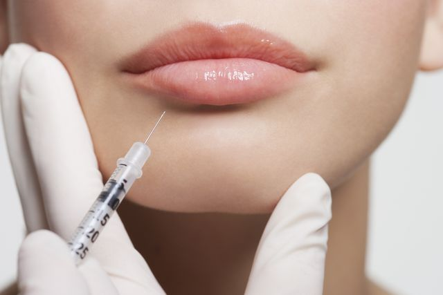 5 Things to Know Before You Getting Dermal Fillers